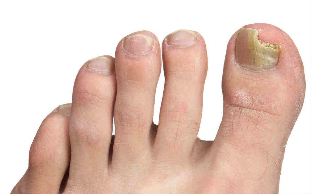 Tratamiento para eliminar hongos de las unas delos pies