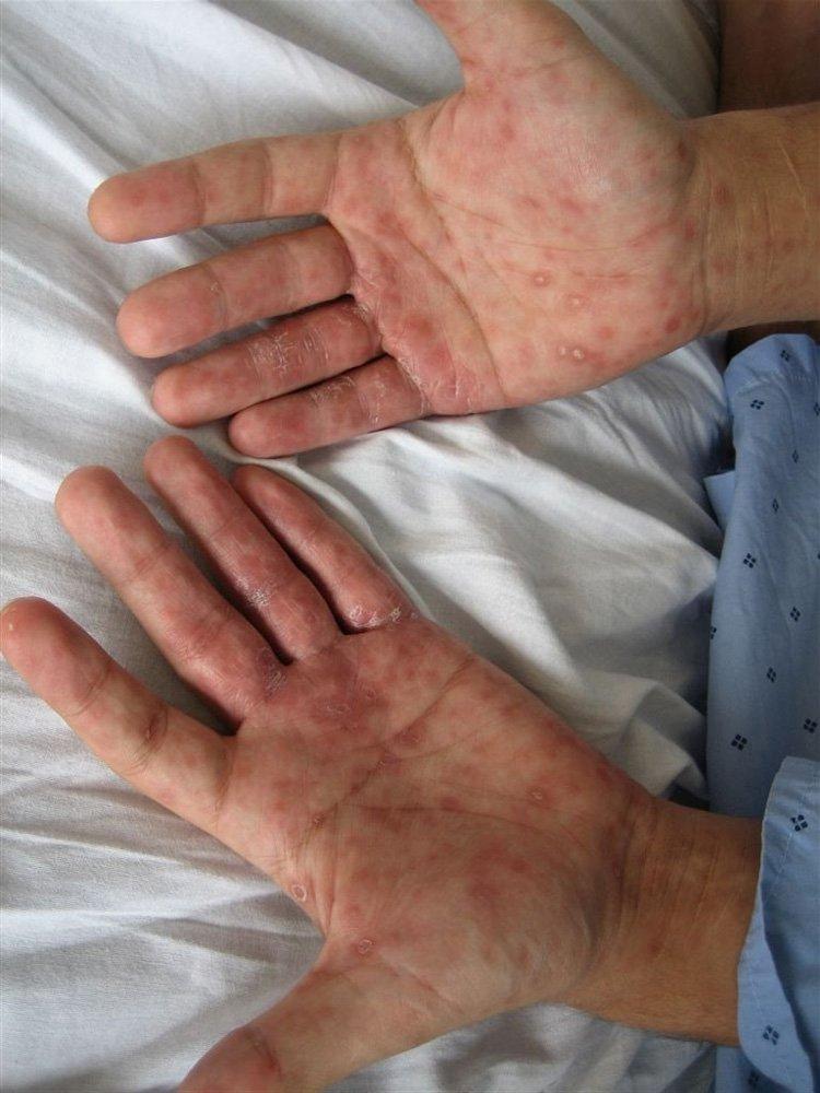Sifilis imagenes de la enfermedad