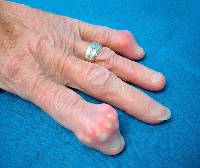 metodos para determinar acido urico en sangre porque sale el acido urico bajo remedios caseros para gota en el pie